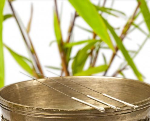 Heilpraktikerin Kempten Akupunktur